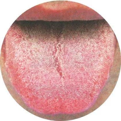 史上最全!高清舌診圖譜——陰虛體質典型舌象 - 每日頭條