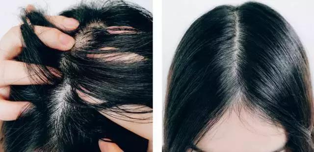 女生總掉頭髮怎麼辦?這款日本「防脫髮」神器。一定能幫到你! - 每日頭條