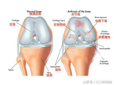 膝關節炎該如何康復 - 每日頭條