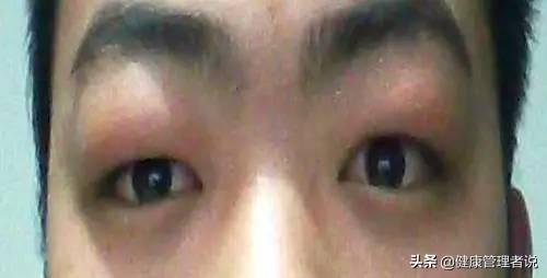眼睛浮腫是不是腎不好?早上起來要注意身上的這些變化 - 每日頭條