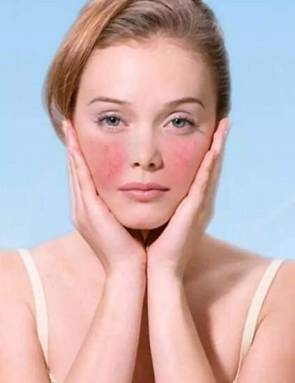 梅梅護膚老師:皮膚敏感臉上有紅血絲怎麼辦? - 每日頭條