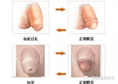 科普:圖解包皮手術全過程 - 每日頭條