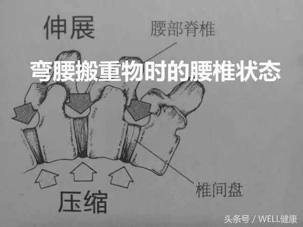 腰突了,用這些正確姿勢搬東西,才能極大的減小腰突癥加重的可能 - 每日頭條