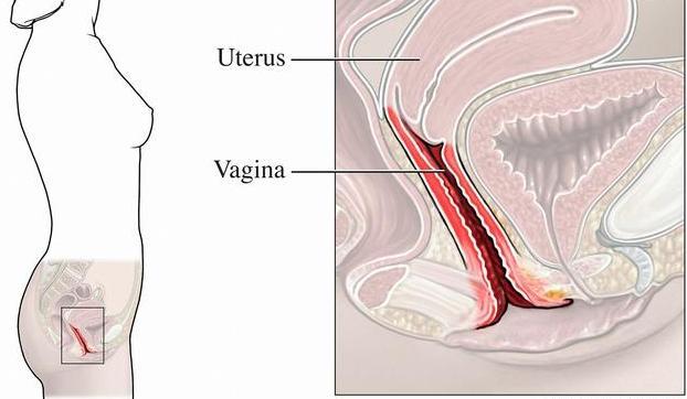 容易引起陰道炎的6個不起眼的性生活方式! - 每日頭條