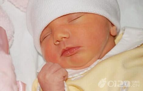 新生兒黃疸正常指數是多少? - 每日頭條