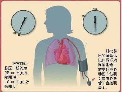 動則氣喘吁吁需警惕肺動脈高壓。年輕人多發! - 每日頭條