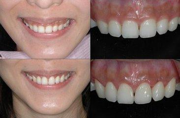 微笑時露出八顆牙那叫魅力,露出牙齦那叫尷尬 - 每日頭條