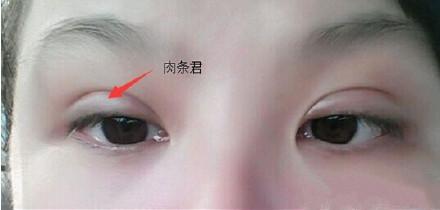 為什麼我割雙眼皮後比別人消腫慢呢? - 每日頭條
