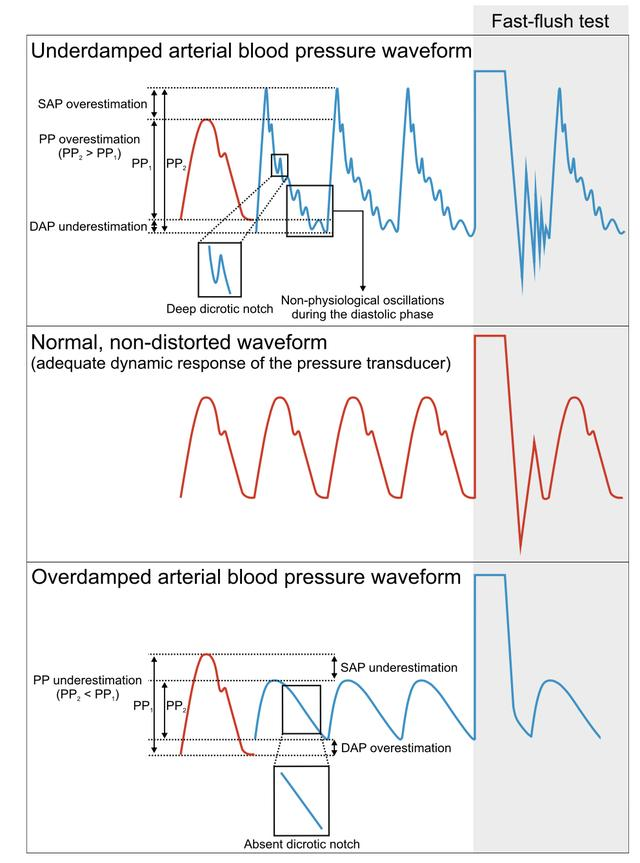 Critical Care:動脈壓監測5步法 - 每日頭條