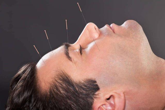 每個人都適合針灸嗎?中醫師這樣說…… - 每日頭條