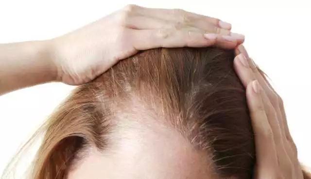 產後掉頭髮不要怕。做到這四步輕鬆防脫髮~ - 每日頭條