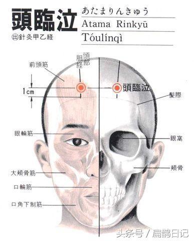 人體穴位大全——頭臨泣穴:頭痛,目眩,流淚,鼻塞,耳聾等 - 每日頭條
