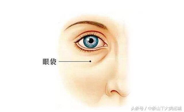 不要錯把眼袋當成黑眼圈。教你3招。可以快速去除眼袋的方法 - 每日頭條