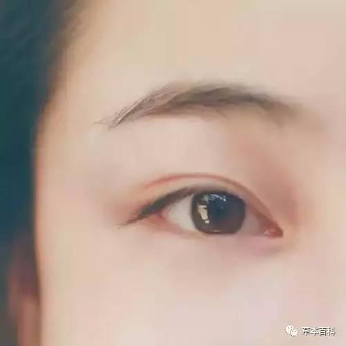 眼睛乾澀瘙癢,是你眼睛太累了 - 每日頭條