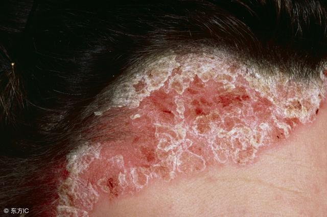 銀屑病前期會出現什麼癥狀,你知道什麼是「薄膜現象」? - 每日頭條