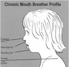 這個習慣讓孩子越長越丑 導致齙牙還影響臉型!父母要注意了 - 每日頭條