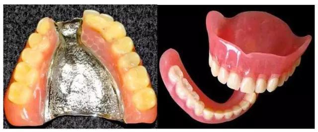 脫牙後的選擇--活動假牙?牙橋?種植牙? - 每日頭條