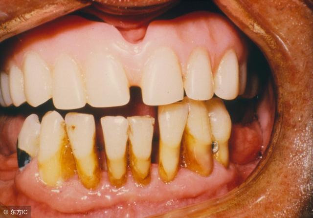 越來越多的年輕人牙齦萎縮 牙齦該如何逆襲? - 每日頭條