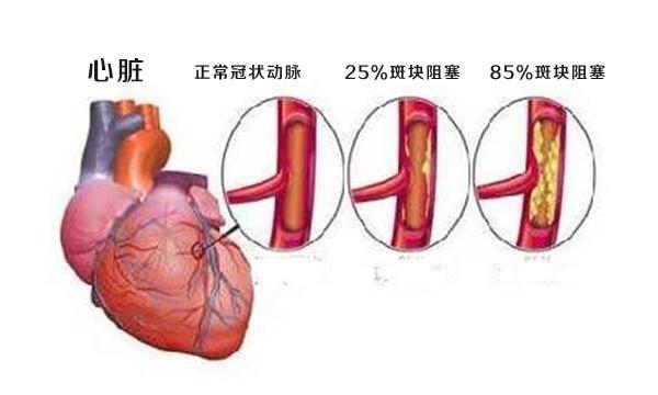 我們常說的心腦血管疾病包含哪些及其預防方法 - 每日頭條