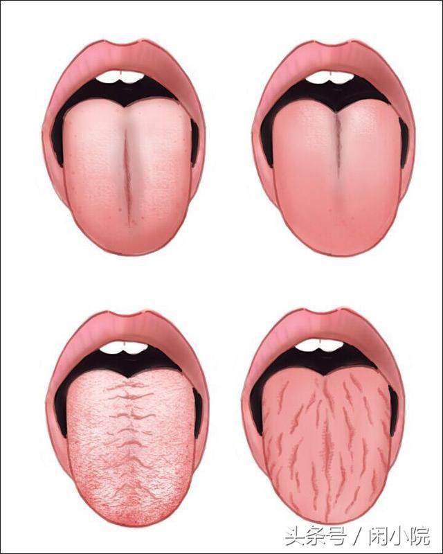 看舌相看健康。舌面出現裂紋裂縫那麼身體嚴重缺乏津液的滋養 - 每日頭條