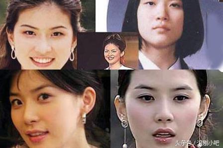 整容前後兩張臉的韓國明星,哪一款的變臉是你的菜? - 每日頭條