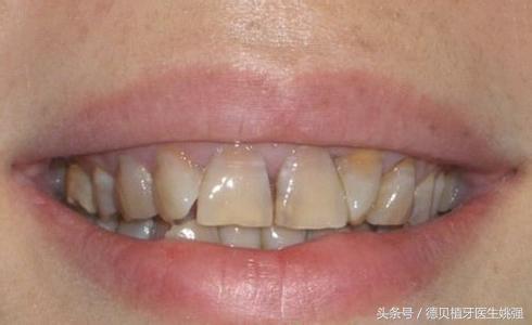 牙齒縫黑黑的就是蛀牙嗎? - 每日頭條