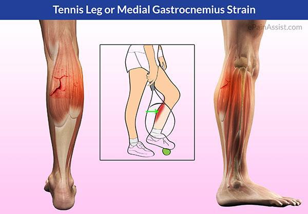 網球腿的臨床診斷 - 每日頭條