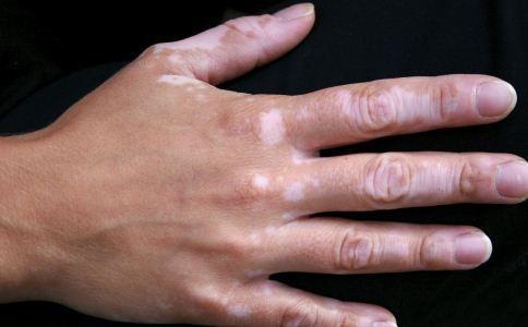 手脫皮是什麼原因 要如何治療 - 每日頭條