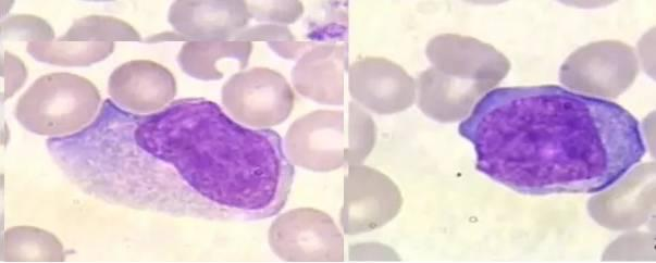 傳染性單核細胞增多癥,委屈了「單核細胞」! - 每日頭條