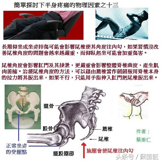 蔡崇仁講解:簡單探討下半身疼痛的十四大物理因素 - 每日頭條