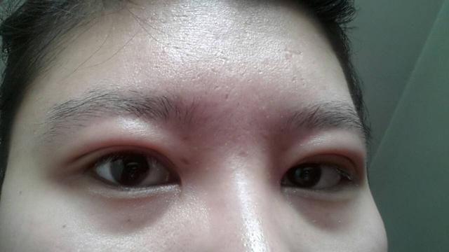 眼睛有這些小毛病。不用找醫生。都可以自己解決! - 每日頭條