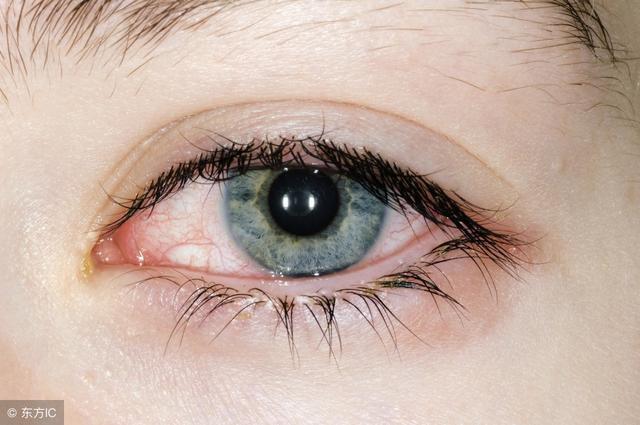 春季過敏性結膜炎的防治 - 每日頭條