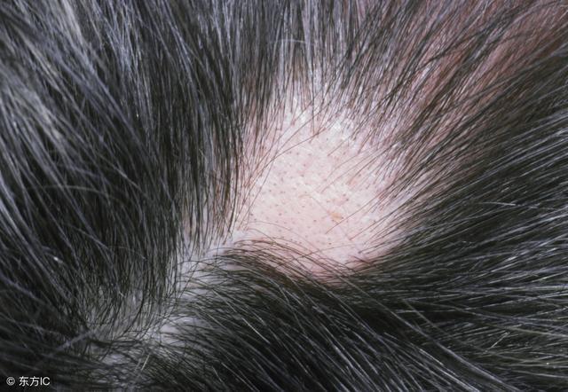 斑禿影響形象。多了解才能躲過去。治療也有方 - 每日頭條