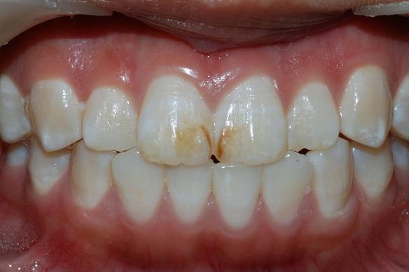 牙齒有黑點是蛀牙。那有白斑究竟是什麼? - 每日頭條