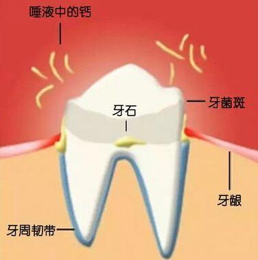 一招教你輕鬆處理牙齒內側黃黃的牙結石! - 每日頭條
