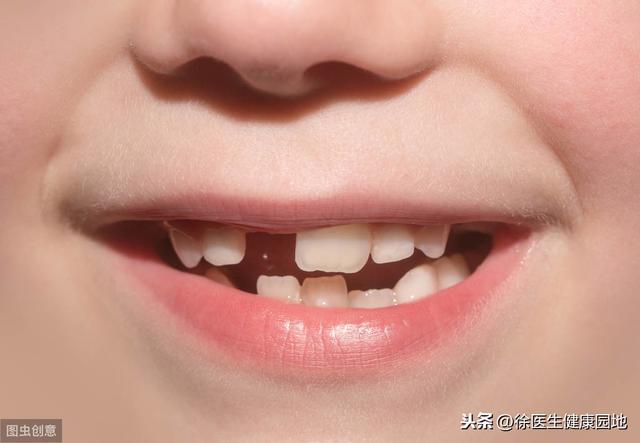 看牙齒知健康,牙齒反映五臟六腑,你可知道? - 每日頭條