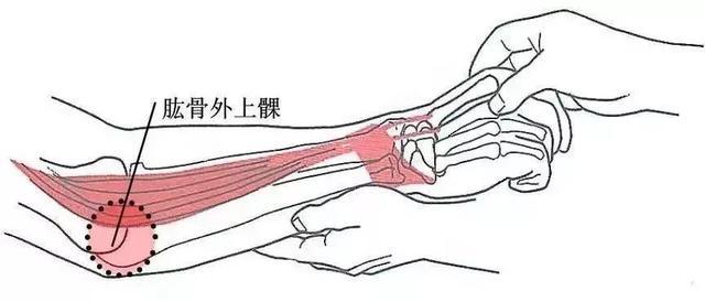 胳膊肘疼。是怎麼回事? - 每日頭條