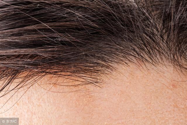 專家建議頭皮毛囊炎的預防7建議 - 每日頭條