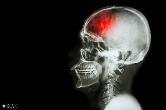 腦卒中有哪些危險因素?腦卒中的常見癥狀有哪些? - 每日頭條