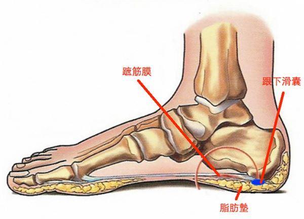 腳底好痛!足跟痛3原因大解密 - 每日頭條