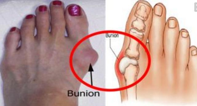 你是否也在忍受著腳拇指外翻的痛苦? - 每日頭條