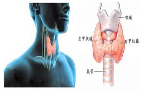 甲狀腺炎會引起的甲亢嗎?為什麼會得甲狀腺炎這種疾病? - 每日頭條