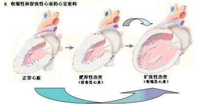 積極降壓。精選藥物。讓高血壓肥厚的心肌「瘦」回來! - 每日頭條