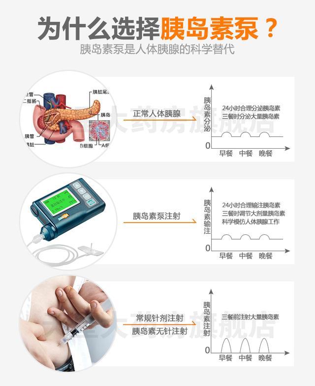 胰島素泵的治療優勢、糖尿病患者的第一選擇 - 每日頭條