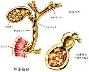 膽結石不開刀:預防和治療膽結石的新方法 - 每日頭條