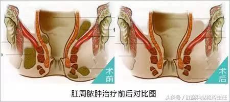 肛周膿腫為何會形成肛瘺?肛周膿腫要怎麼治療? - 每日頭條