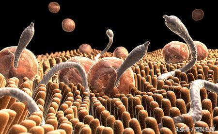 女子誤食福壽螺。寄生蟲入侵腦部!怎麼判斷身體是不是有寄生蟲? - 每日頭條