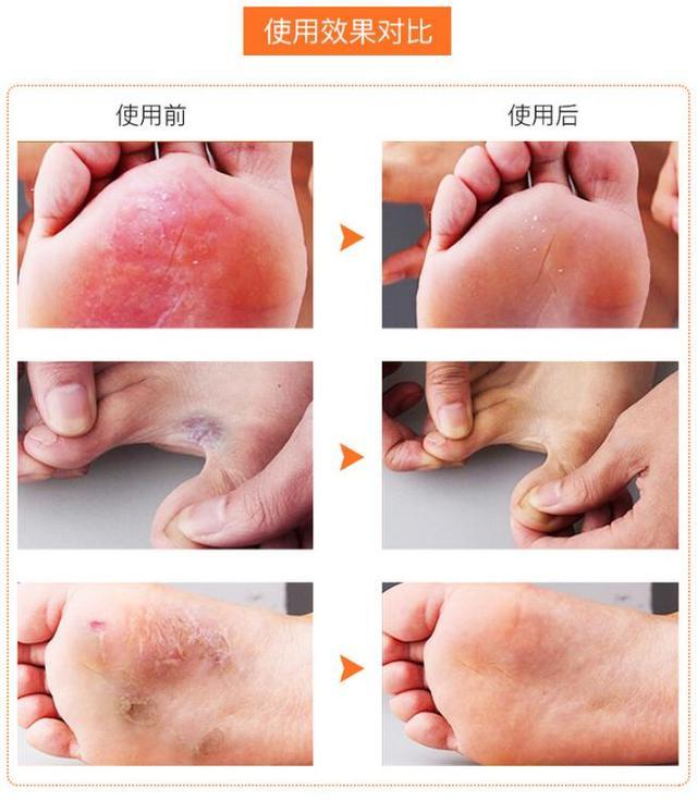 腳氣腳臭有救了!有了這塊韓國嫩足皂,輕輕一洗,殺菌治腳氣,告別瘙癢,連死皮都不見了 - 每日頭條