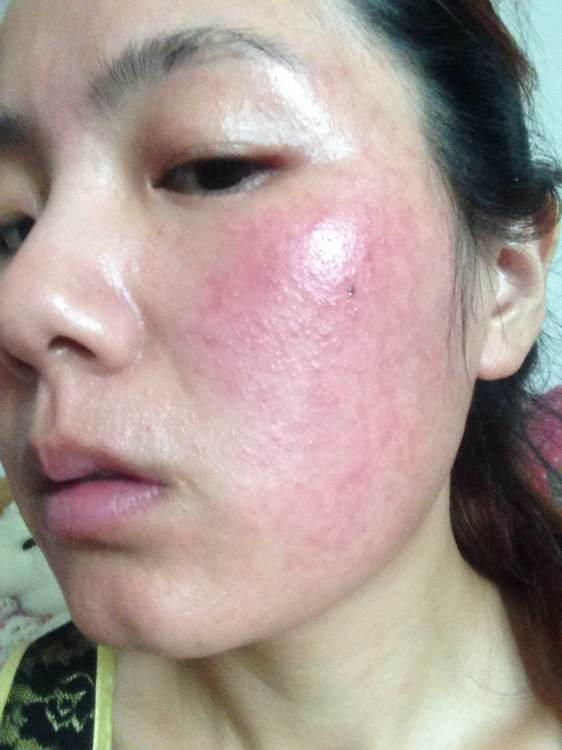 皮膚過敏未必是過敏。也有可能是「激素臉」哦 - 每日頭條