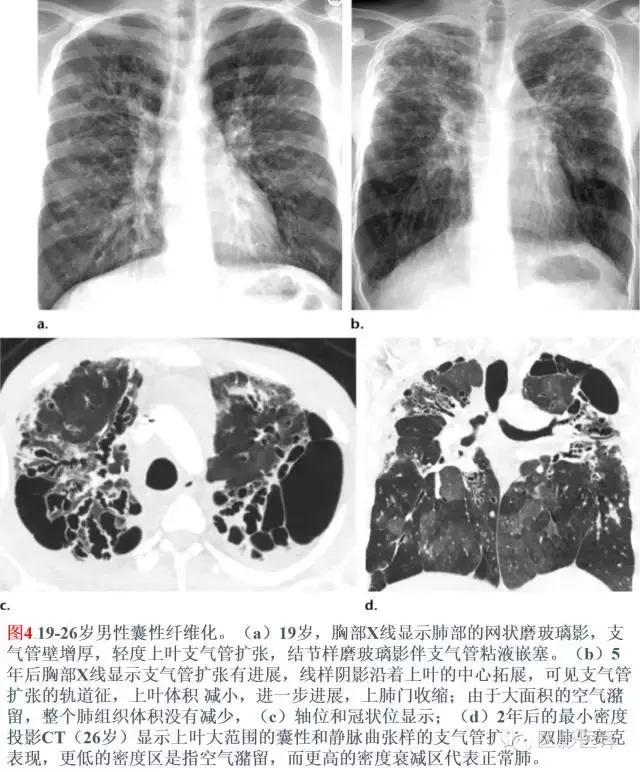 「圖文詳析」|支氣管擴張的機制、影像特徵和病因 - 每日頭條